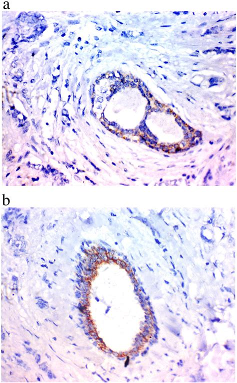 (a) Invasive carcinoma (NST) showing negative expression