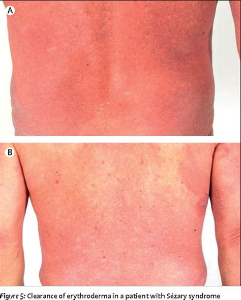 Figure 5 from Mycosis fungoides and Sézary syndrome