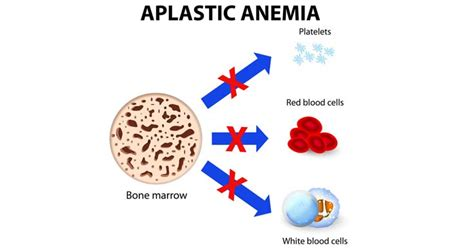 Getting to know Aplastic Anemia - Nursing Crib