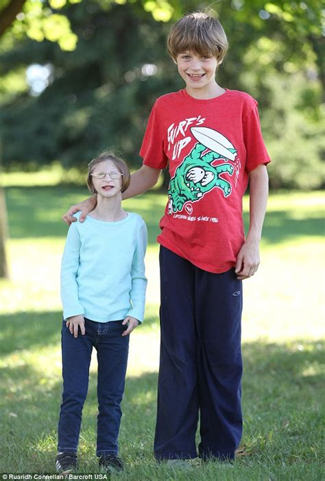 12-year-old Ontario girl with primordial dwarfism weighs