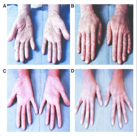 Patient 4 has Sezary syndrome with generalized